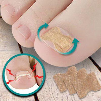 Ingrown Toenail Adjustment Patch