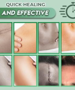 Reusable Surgery Scar Removal Silicone Gel, Keʻokiʻana i nā Scar scar Removal Silicone Gel, Scaral Removal Silicone Gel, Removal Scar, Silicone Gel