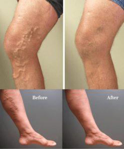 Varicose Veins Treatment Cream,Veins Treatment Cream,Treatment Cream,Varicose Veins Treatment,Varicose Veins