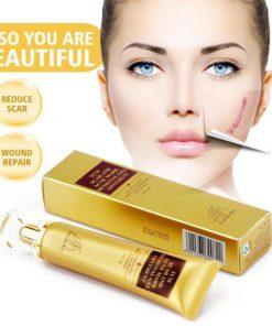 Scar Remover Cream,Acne Scar Remover,Acne Scar,Remover Cream