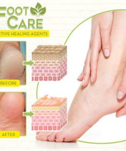 Fungal Reverse Herbal Treatment Foot Soak,Reverse Herbal Treatment Foot Soak,Herbal Treatment Foot Soak,Treatment Foot Soak,Foot Soak