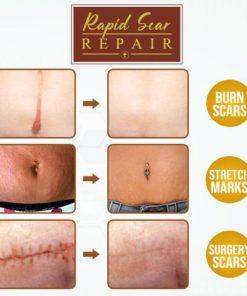 Body Mark Repair Treatment Gel,Repair Treatment Gel,Treatment Gel,Body Mark
