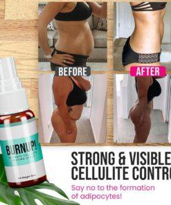 Cellulite Heating Spray,Heating Spray,Cellulite Heating