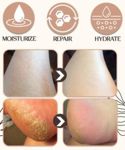 Cracked and Dry Heel Repair Clam Balm