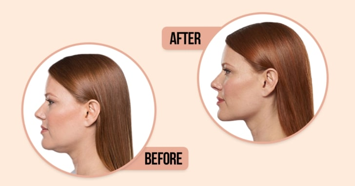 How To Get Rid of a Double Chin,Get Rid of a Double Chin,Double Chin