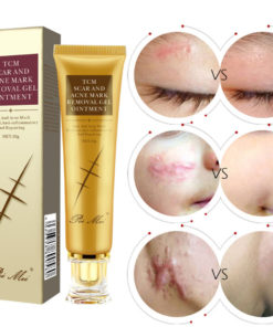 TCM Acne Scar Cream,Acne Scar Cream,Scar Cream,Acne Scar,TCM Acne Scar